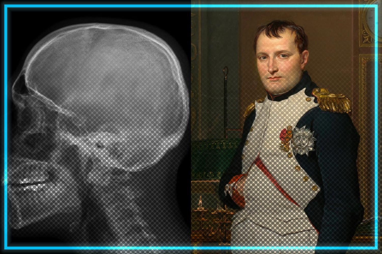 Naukowcy odkryli w czaszce Napoleona Bonaparte obiekt o średnicy 0,5 cala