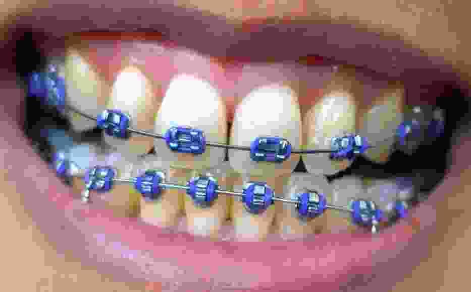Aparaty ortodontyczne DIY - niebezpieczny trend wśród dzieci i młodzieży!