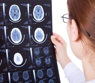 Trwa dyskusja na temat pomorskiej neurochirurgii