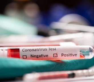 20 nowych zakażeń koronawirusem na Pomorzu, w tym 7 z Trójmiasta