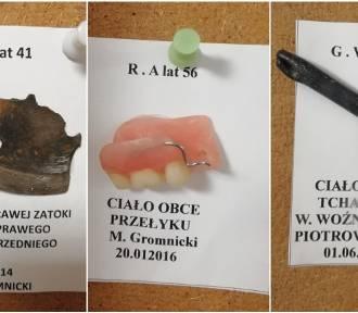 Nie uwierzysz! Te rzeczy wyciągnięto z ciał pacjentów szpitala w Słupsku! [ZDJĘCIA]