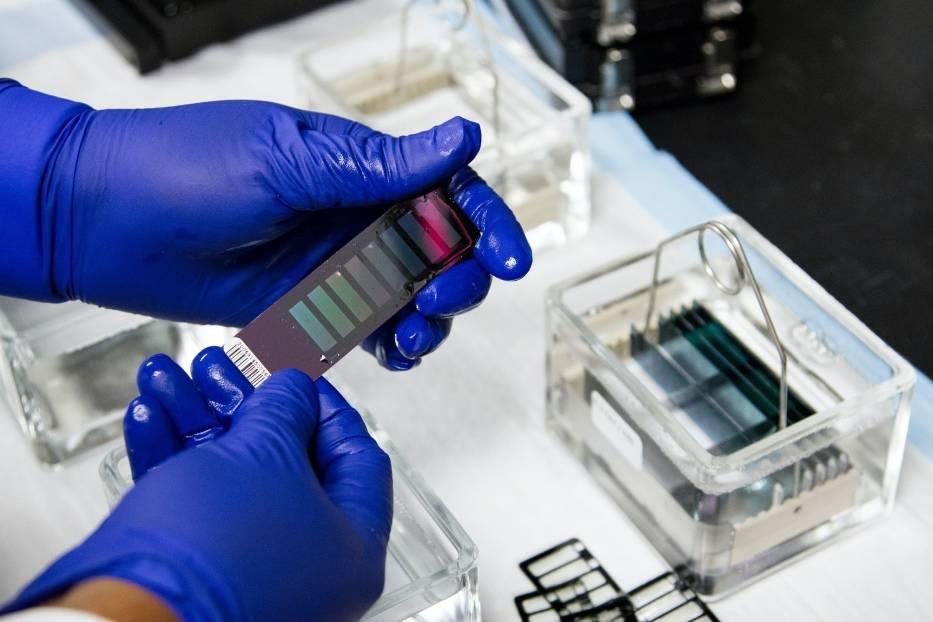 Badania genetyczne to sposób na wykrycie mutacji, które mogą zagrażać ciężkim lub nawet śmiertelnym przebiegiem zakażenia koronawirusem