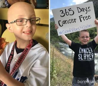 Te zdjęcia poruszają! Oni wygrali z rakiem [ZDJĘCIA]