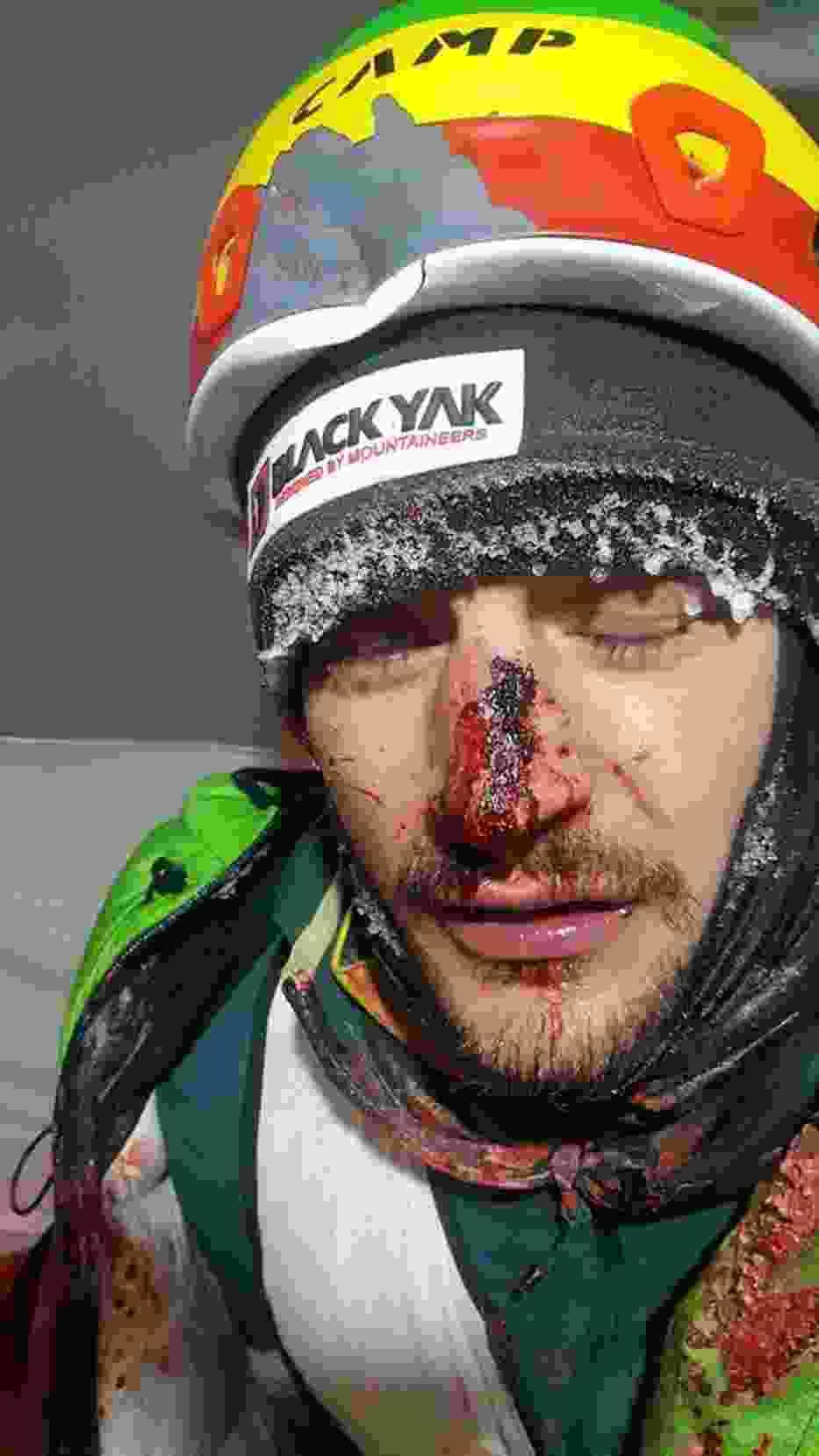 Adam Bielecki doznał głębokich obrażeń i musiał być szyty. Czeka go kilkudniowa przerwa.