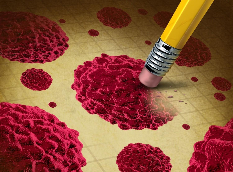 12 przyczyn rozwoju nowotworów – sprawdź, które możesz wyeliminować!