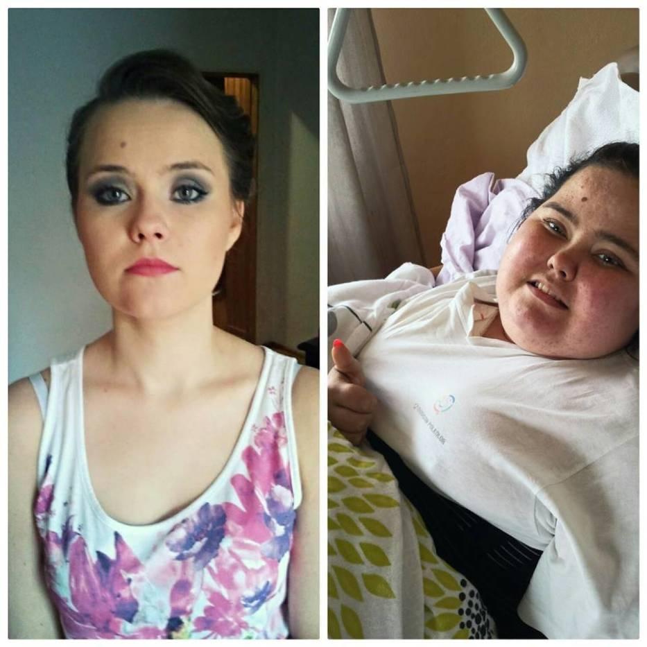 Martę po prostu bolała głowa, okazało się że to guz. Walczy z rakiem już 4 lata a Ty możesz pomóc!