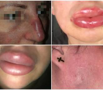 Kosmetolog skazana za pechowy zabieg powiększania ust