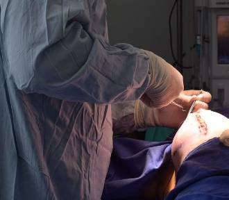 Powiększanie piersi żelem Aquafilling. Rzecznik Praw Pacjenta szuka poszkodowanych kobiet